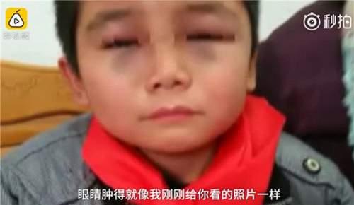 小学生被老师打成熊猫眼
